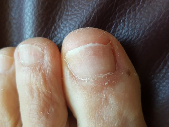 Nail fungus treatment over the counter